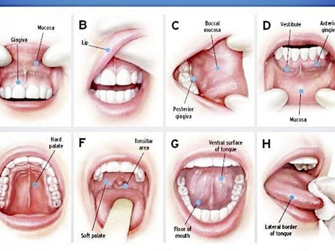 Cancer bucal. Simptome si factori de risc predispozanti - dr. aristide - dentist bun in Bucuresti